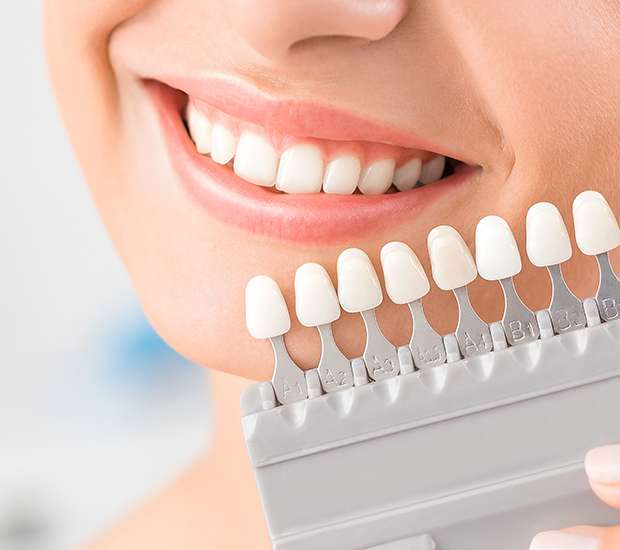 Rockland Dental Veneers and Dental Laminates